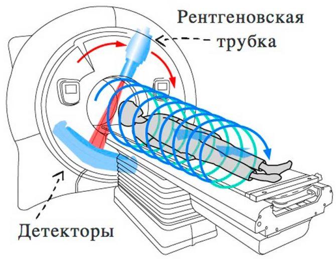 Принцип работы спирального томографа