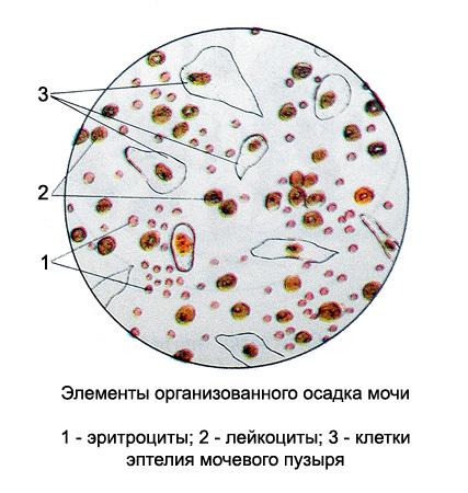Осадок мочи под микроскопом