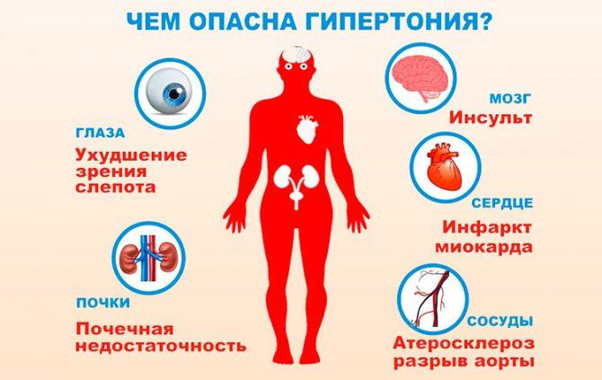 Гипертония (схема)