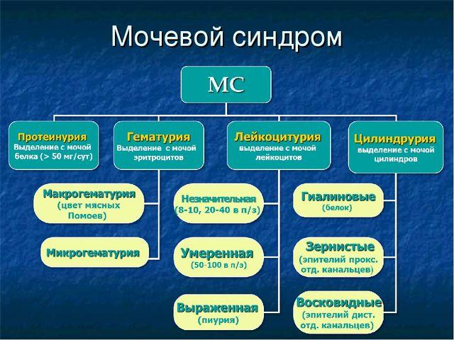 Мочевой синдром — схема