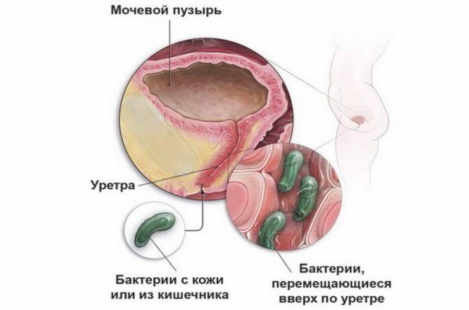 Микроорганизмы, проникающие в мочевые пути