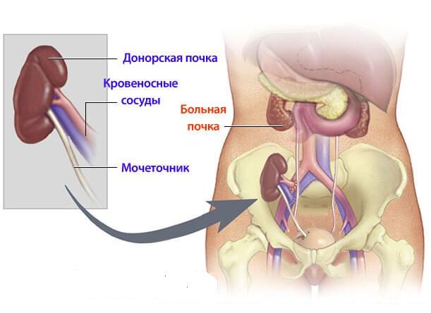Пересадка почки в гетеротопическую позицию (схема)