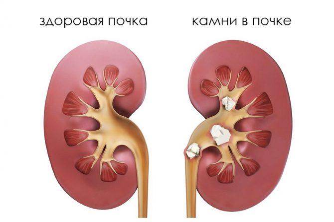 Мочекаменная болезнь (схема)