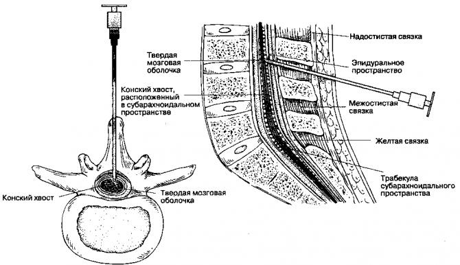 Перидуральная анестезия (схема)