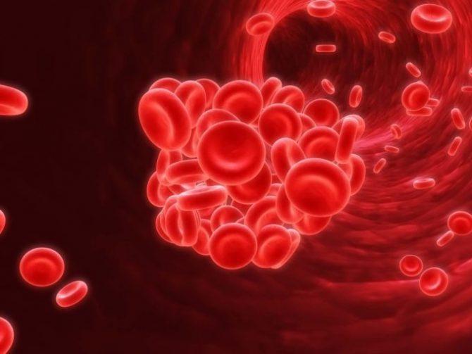 Кровяной сгусток в просвете сосуда (схема)